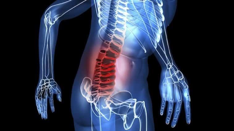 hernie discale traitement